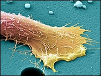 前列腺癌細胞