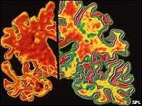 老人痴呆症腦部掃描圖象