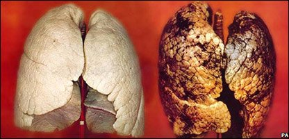 Anti-smoking advert showing healthy lung and diseased lung