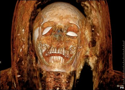 Scan of the mummy  (photo by Philips Healthcare and University of Chicago/PA Wire)