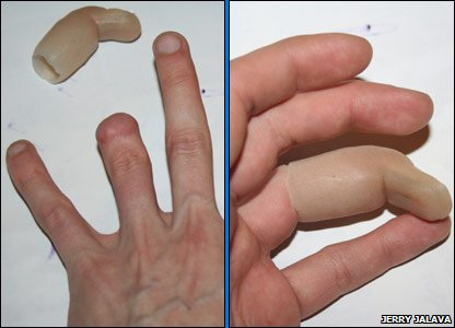 Jerry's hand with and without the prosthetic finger