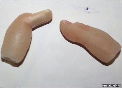 Jerry's prosthetic finger and the shell for his upgrade