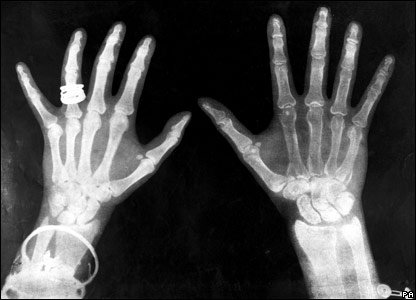 An x-ray of someone's hands