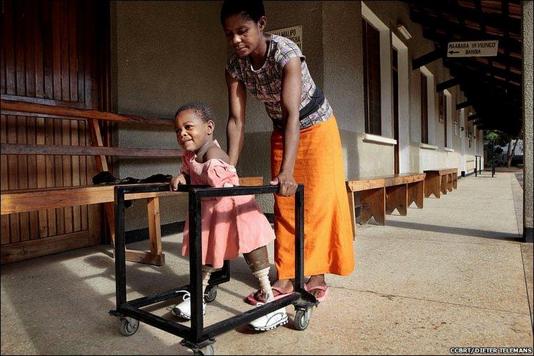 Asha pagtulong sa Amina upang makaiwas at maglakad © CCBRT / Dieter