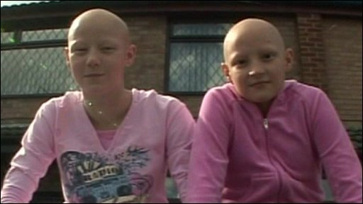 Alopecia Children on Sisters Talk About Alopecia