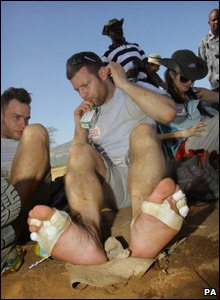 Dermot O'Leary with bandaged feet