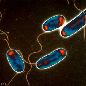 Legionnaires Disease | Safety Services Company