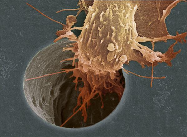 celula cancerigena atravezando un poro en lab.