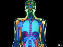 MRI image of the body