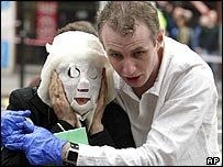 Man helps a woman in a burns mask