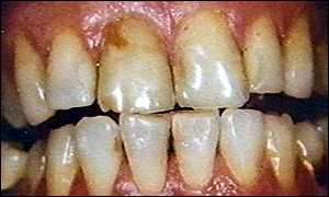 Smoking can damage teeth and gums