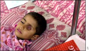 Iraqi child with cancer
