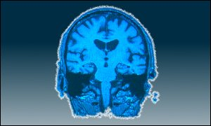 brain scan graphic