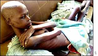 Aids sufferer in South Africa