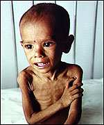 hungry bangladeshi child