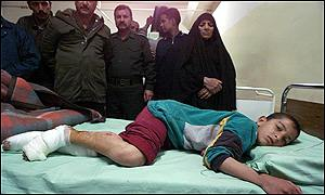 Iraqi boy in hospital