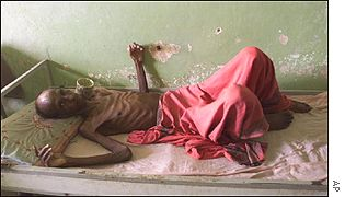 Ethiopian man recovering from TB during 2000 famine