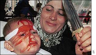 A Shi'a Muslim woman holds her child with a cut forehead