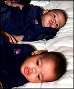 Twins Belinda and Kimberly