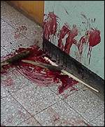 Blood on the walls of a dormitory corridor
