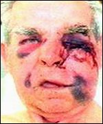Walter Chamberlain before surgery - _1296007_walterface150