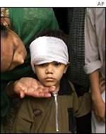 Naved Khan, 3, who was allegedly attacked