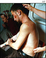 Chechen, Zelimkhan Muskhanov, showing injuries