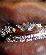 Diamond-encrusted removable teeth have also proven popular