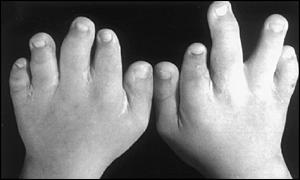 OFDs can cause hand and foot malformations