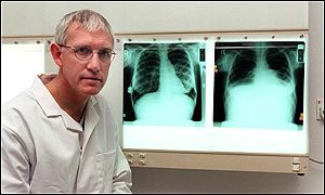 Professor John Dark has used 'repaired organs' in transplants