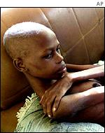 Lindokuhla Mkhwanazi at age 21, one of South Africa's Aids sufferers