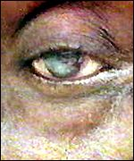 River blindness affected eye