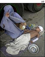 An Afghan woman begs alongside her injured child in Peshawar, Afghanistan