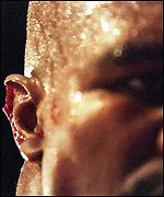 Evander Holyfield's ear after it was bitten by Mike Tyson