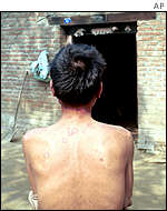 Aids sufferer Yu Daguan shows the lesions on his back, symptoms of the disease