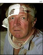 Bandaged and bleeding Robert Fisk