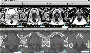 Prostate scan