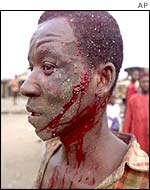 A Hausa bleeds after a machete attack