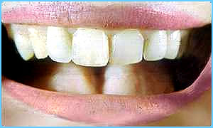 Gm bacteria could stop tooth decay