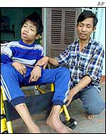Pham Xuan Yem, 47 (R), former North Vietnamese army soldier, sits next to his handicapped 25-year-old son, supposedly a victim of the chemical Agent Orange