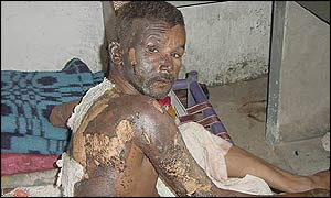 Muslim man burned after attack by Hindu mob