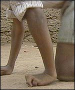 A disabled boy crawling on his hand and foot