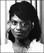 Acid victim after plastic surgery