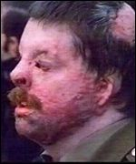 Simon Weston shortly after the Falklands conflict