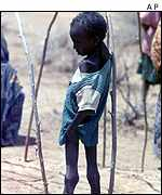 Emaciated Ethiopian child   AP