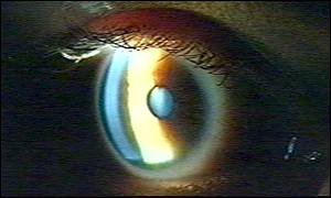 The retina is located at the back of the eye, BBC