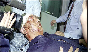 A survivor is filmed by television cameras as he arrives at the hospital