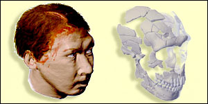 Reconstruction of Neanderthal skull (Proceedings of National Academy of Sciences)