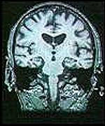 [ image: Diseases like Huntingdon's cause progressive brain degeneration]