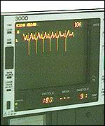 [ image: The researchers found an ECG was not enough for accurate diagnosis]